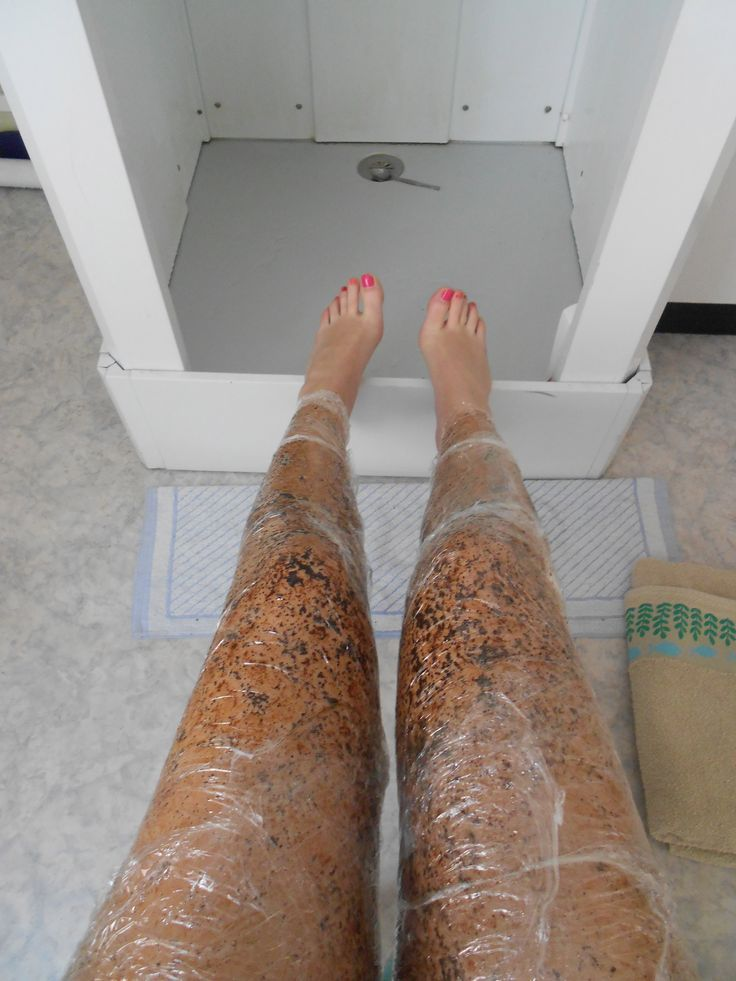 how to get rid of cellulite with coffee