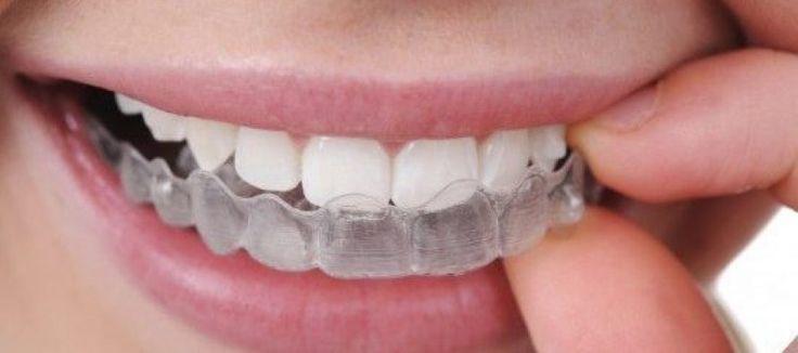 Un étudiant imprime son appareil dentaire en 3D