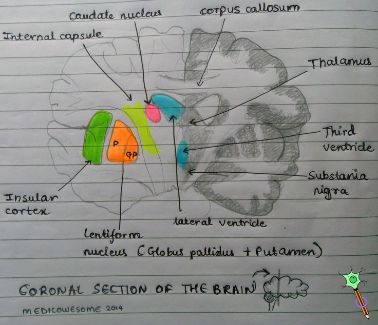 Medicowesome: Coronal section of the brain highlighting lentiform nucleus, caudate nucleus & internal capsule