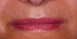 Ontharen met de Light Sheer Diode Laser : een gladde huid, zonder haren