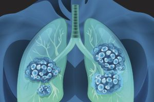 What Are the Chances a Lung Nodule or Spot Is Cancer? - Health Essentials from Cleveland Clinic