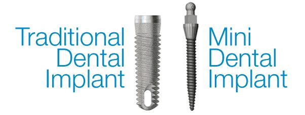 [What are mini implants?] -------------------------------- Mini dental implants are an option for patients looking to replace lost teeth but who don't want (or can't receive) conventional restorations. See our services! http://cvitaminclinic.co.uk/services/ #miniimplant #dentistry #dentalclinic #cvitaminclinic #szeged #hungary