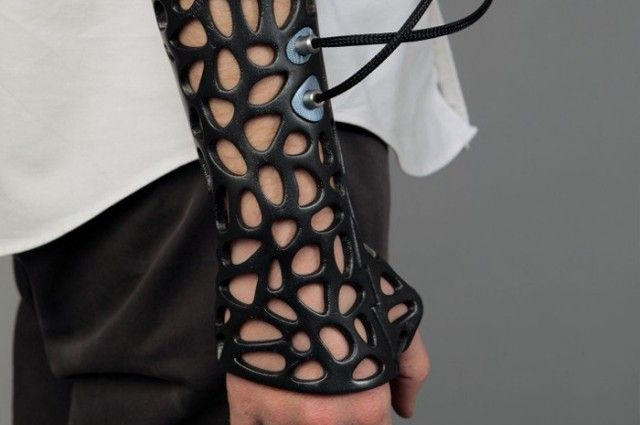 3D Printed Cast Speeds Bone Recovery Using Ultrasound | I Fucking Love Science