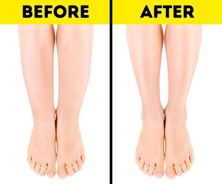 How to get rid of cankles swollen ankles easily fast at