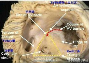 AV Node and Triangle Of Koch | AV Node 以及「科赫三角」 | Pinned Date: 20140702 15:46, Taipei Time | #AVNode #TriangleOfKoch #Imagery #意象