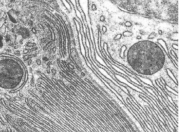 Retículo endoplasmático visto al microscopio electrónico.