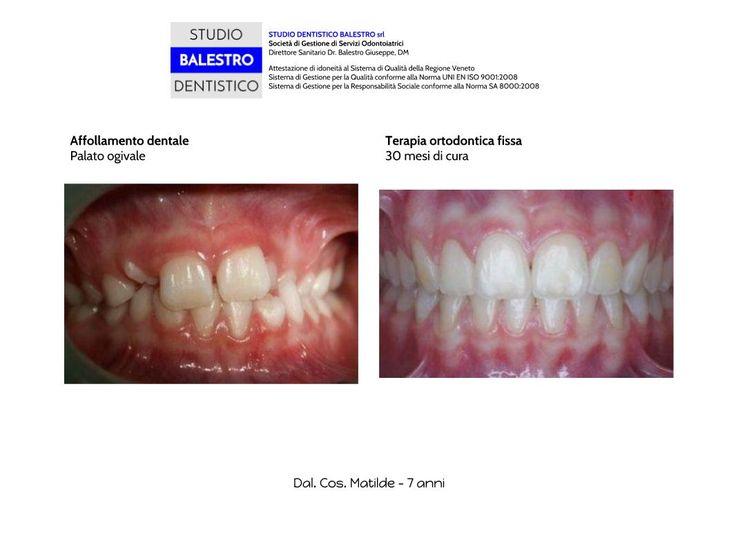 Casi clinici ortodontici Morso crociato monolaterale http://www.studiodentisticobalestro.com/2014/10/morso-crociato-e-affollamento-dentale.html