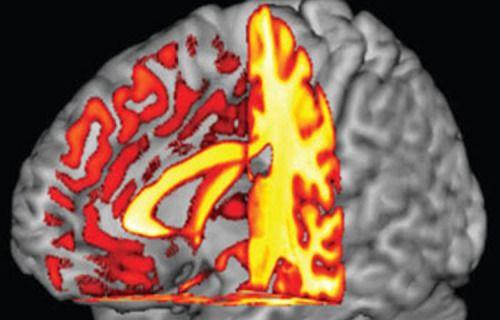 مطالب مرتبط: آشتی سه فرضیه نامرتبط اسکیزوفرنی دارندگان گروه خونی O کمتر به آلزایمر دچار میشوند بهبود وضعیت شناختی در سالمندی با فعالیت بدنی بیشتر در میانسالی ساخت کاملترین نمونه از مغز انسان در آزمایشگاه غذاهای دشمن مغز را بشناسید ارتباط بین رفتارهای ضد اجتماعی با رشد مغزی/شواهد محکم از نقشه ی مغزی نوجوانان شناسایی …