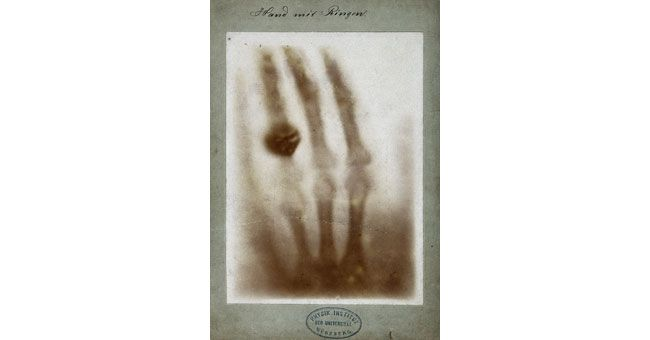 The very first X-ray, taken by its inventor Wilhelm Röntgen (27 March 1845-10 February 1923), was of his wife's left hand....nice wedding ring