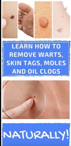 LEARN LEARN HOW TO REMOVE WARTS, SKIN TAGS, MOLES AND OIL CLOGS NATURALLY! – Toned Chick http://wartremovalpro.com/treat-skin-moles/