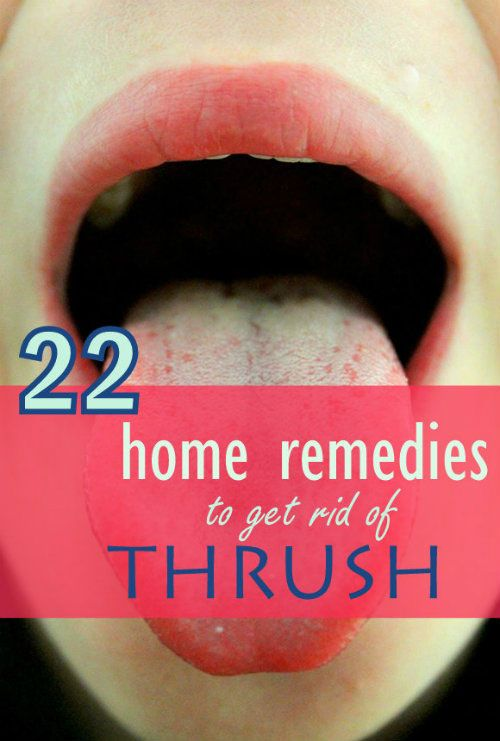 You can easily get rid of thrush using some easy home remedies.