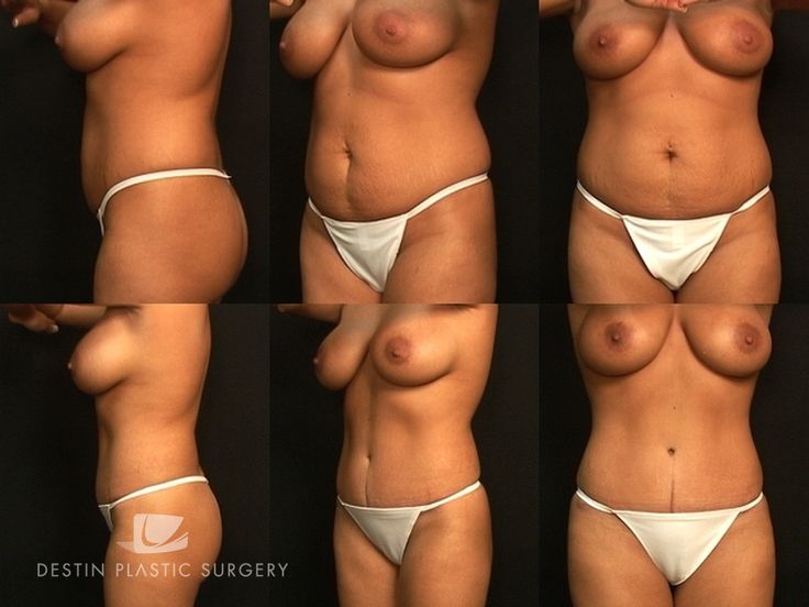Destin Plastic Surgery — Photo Gallery - Abdominoplasty Cases