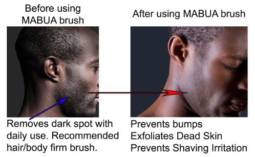 how to avoid shaving bumps on neck
