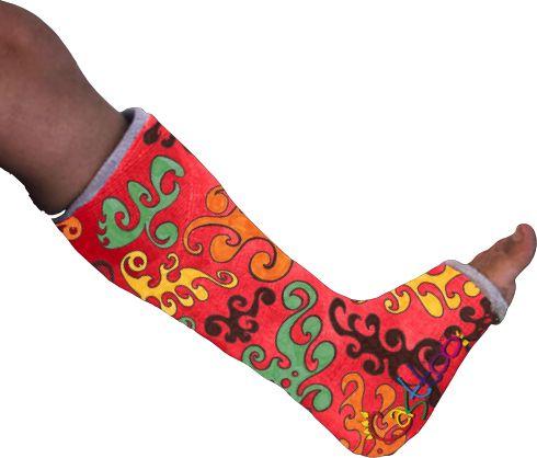 17 best images about cast decorating ideas on pinterest for Arm cast decoration ideas