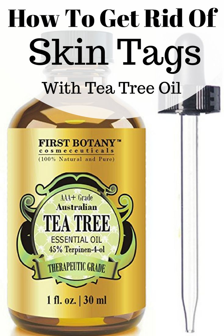 Find out how to remove skin tags with tea tree oil, plus 10 other skin tag home remedies.