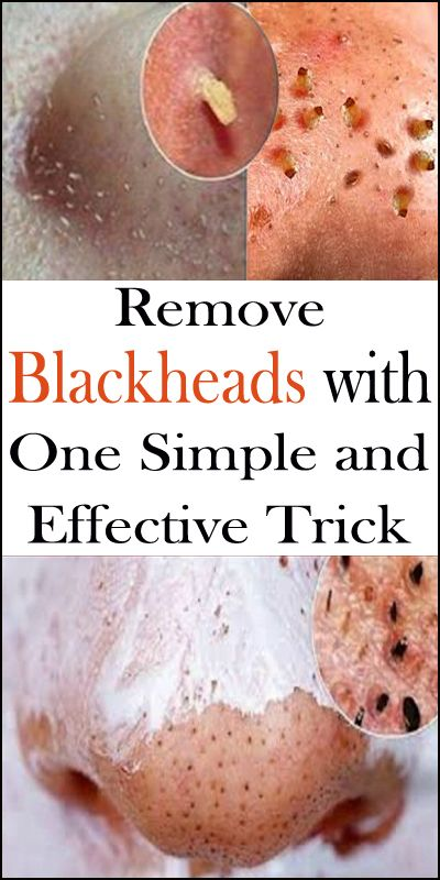 Remove Blackheads with One Simple and Effective Tr…