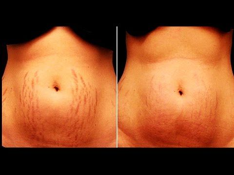 How to Get Rid of Stretch Marks Fast Naturally-GET RID OF STRETCH MARKS. How to Get Rid of Stretch Marks Fast Naturally-GET RID OF STRETCH MARKS.  Extend imprints are profound scars from extending of the skin. They happen because of pregnancy young develo