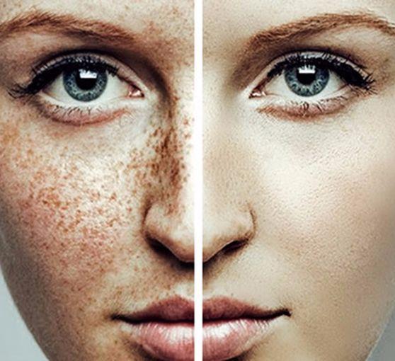 Экология жизни. Красота: Меланоциты – клетки, отвечающие за основную…
