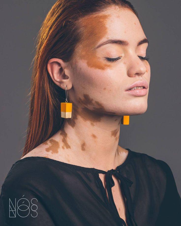 Rencontre femme vitiligo