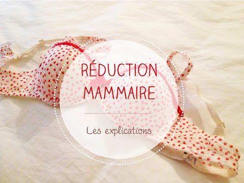 Réduction mammaire, mon expérience. Chirurgie esthétique :)
