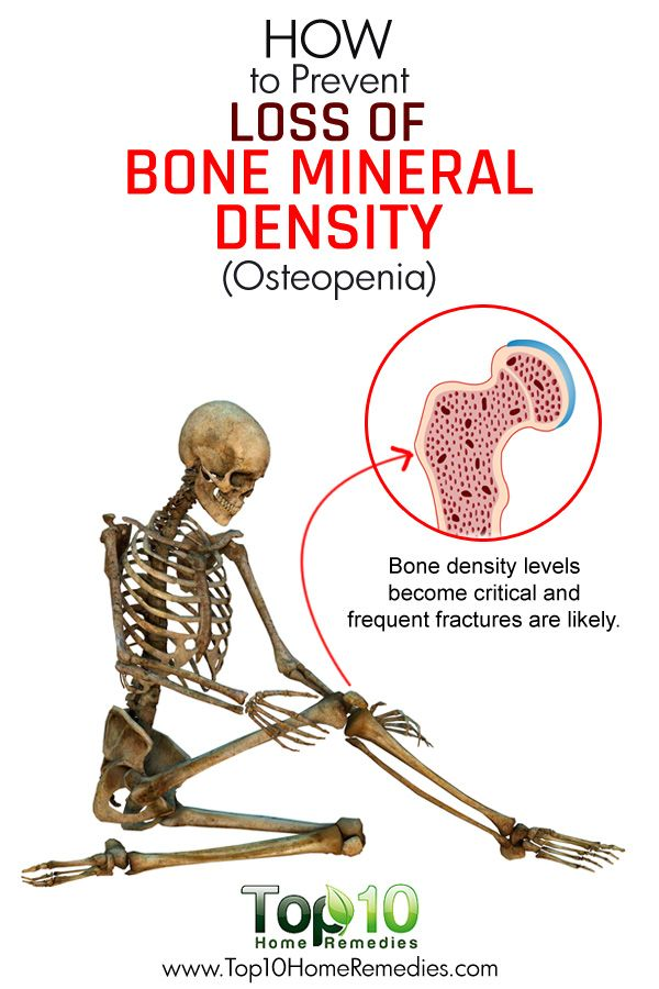 How to Prevent Loss of Bone Mineral Density (Osteopenia)