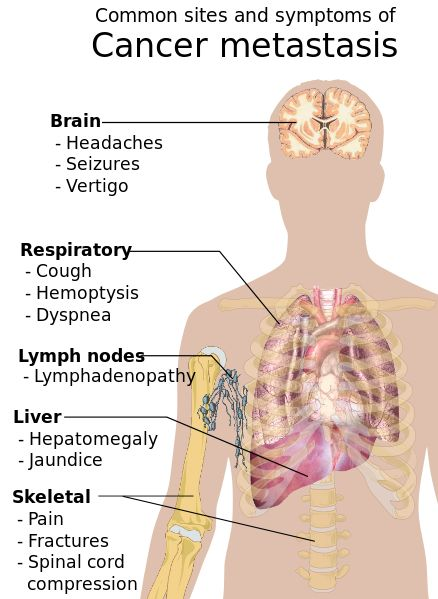 Symptoms of Cancer; What are the initial Signs and Symptoms of Cancer?