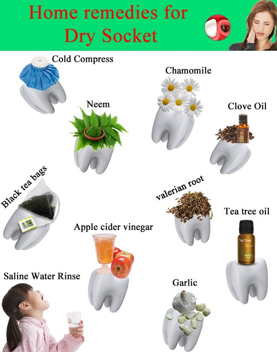 Natural Remedies For Dry Socket