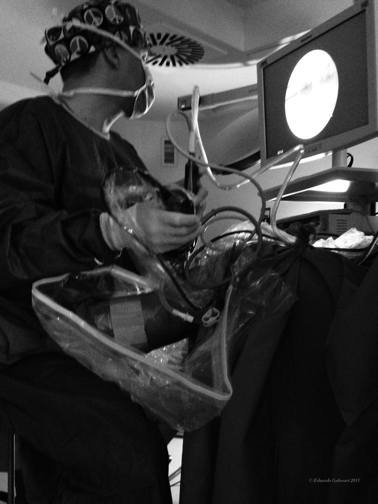 Artroscopia de una rodilla.