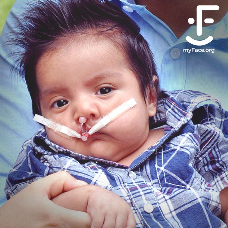 Every 30 seconds, a child in the U.S. is born with a #craniofacial condition which can threaten their quality of life. YOU can help transform a life and be a source of #hope for these children. Help #support our critical mission by donating today: https://www.myface.org/donate/