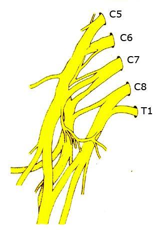 Schematisk bild av plexus brachialis - armens nervfläta.