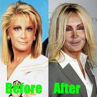"""If you think about disasters of celebrity plastic surgery, saying Joan Van Ark in this list! She is well-known as roles on TV shows """"Dallas"""" and """"Knots Landing""""."""