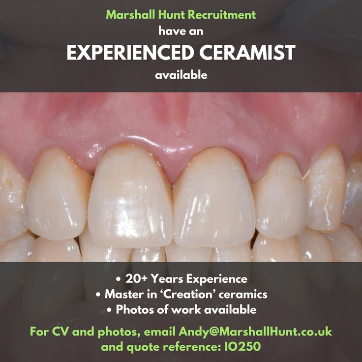 **Talented Ceramist available** Prefers London area, photos of work available on request.  For more info, email andy@marshallhunt.co.uk and quote reference: IO250