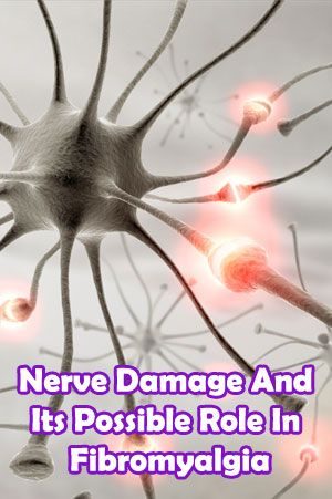 Nerve Damage And Its Possible Role In Fibromyalgia