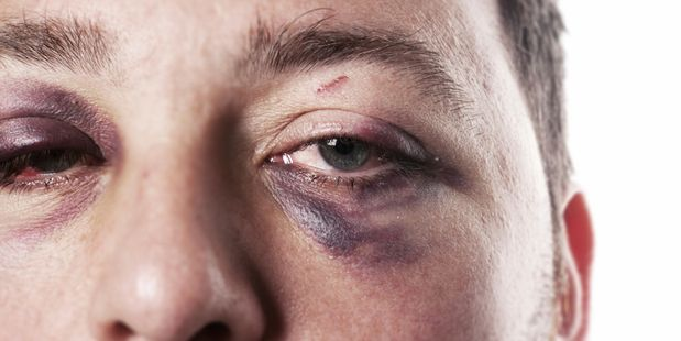 Family violence is still not just a male problem