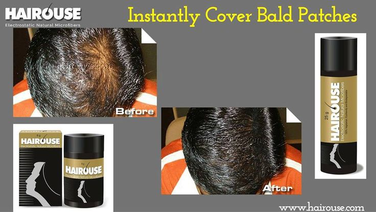HAIROUSE‬ is the best hair building fiber which can quickly and effectively improve the appearance of hair.Electrostatic Natural Microfibers for Covering Bald Patches Instantly. For more details visit us @ www.hairouse.com