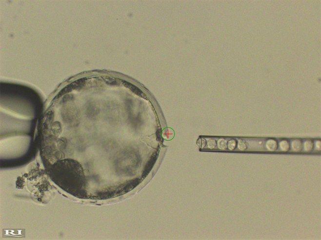 ヒトの人工多能性幹細胞(iPS細胞)をブタの受精卵(左)に注入する操作=米ソーク研究所チーム提供