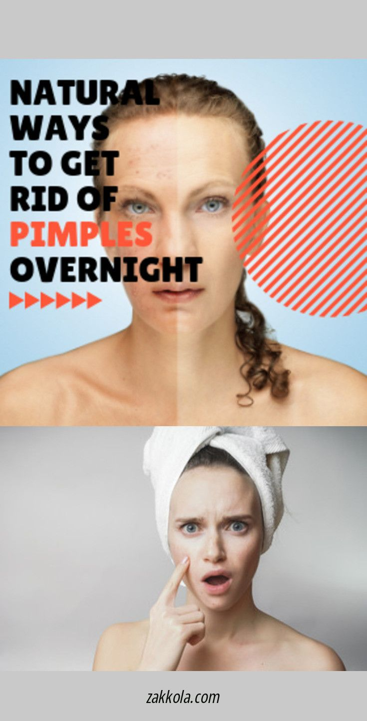 Are Antibiotics Doing Nothing For Your Acne Then You Dear Friend May Have Antibiotic Resistant Acne Bacteria Living Acne Treatment Acne Bacteria Acne Remedies