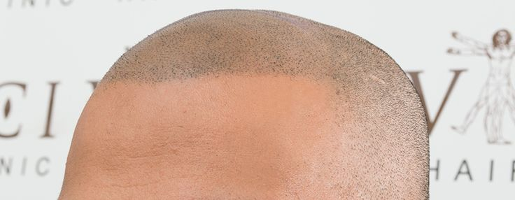 Assad's Micro Scalp Pigmentation Hairline - Over the 4 or so sessions I had, the design of my Micro Scalp Pigmentation hairline was established, the density was created so it replicated real hair follicles, and over all the ability to tell the difference between my existing hair and the MSP treatment is practically undetectable #happy #satisfied #selfconfidence #selfesteem #improvement #hair #MSP #hairtatoo #scalp #lifechanging