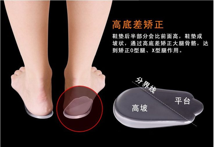 Gel Insoles Orthotic O-Leg X-Type Legs Pigeon toe Orthopedic insole Heel Pad Silicone Gel Insoles 2017 Child Student Shoe Insole