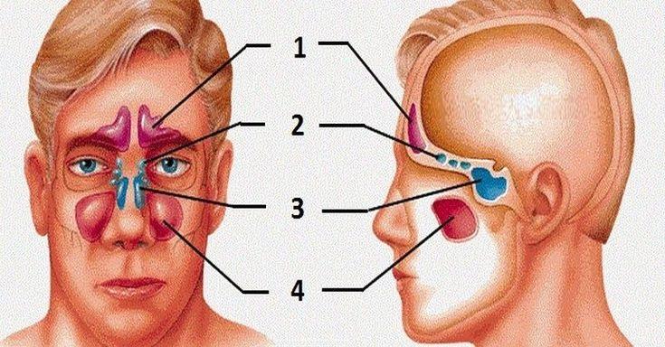 Zápaly dutín, známe aj pod odborným názvom sinusitída, sú infekčným ochorením výstelky pokrývajúcej nosovo-ušné priechody. Zdravé dutiny umožňujú bezproblémový priechod vzduchu. Ak sú však opuchnuté azablokované, dáva sa tým priestor množeniu patogénnych baktérií, ktoré vedú knásledným infekciám. Príznaky atypy zápalov dutín Medzi najčastejšie príznaky zápalov dutín patria: horúčka bolesti tváre