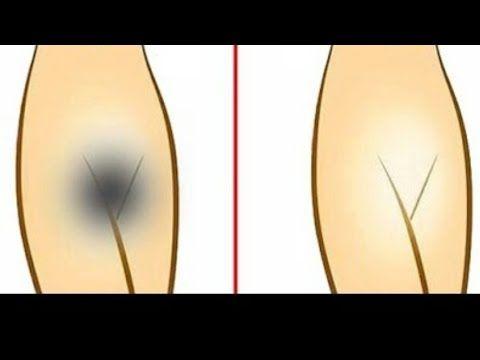 Como blanquear tu zona (íntima) y entrepiernas en 5 días.( método express) - YouTube