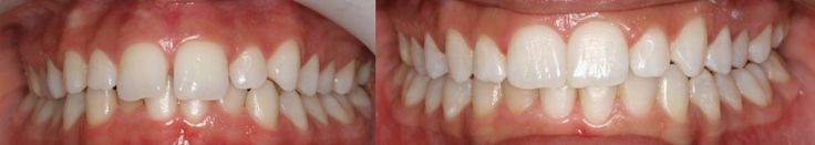 Dr. Ginger Price Elite Invisalign Provider: Before and After Photos (602) 468-1135 www.gingerpricedds.com