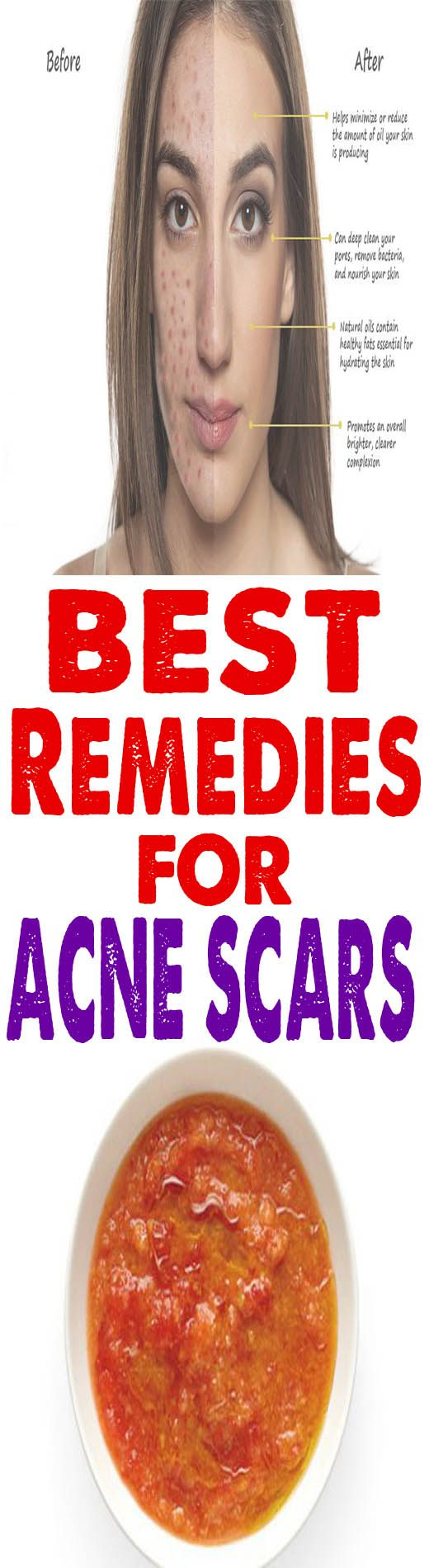 Deep scar removal home remedies - How to get rid of deep acne scars overnight naturally