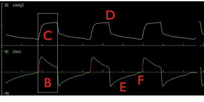 Monitoraggio grafico della ventilazione meccanica: un piccolo esercizio. Il commento. » ventilab