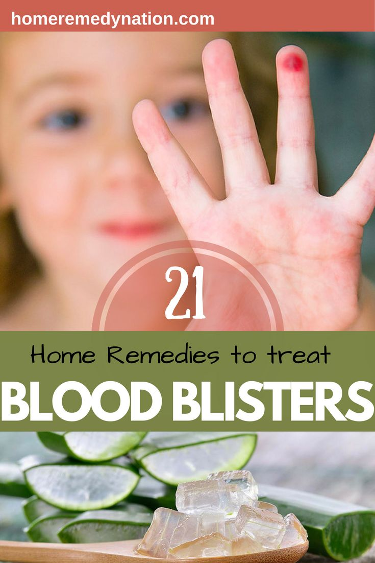 Get Rid of Blood Blisters Safely at home.