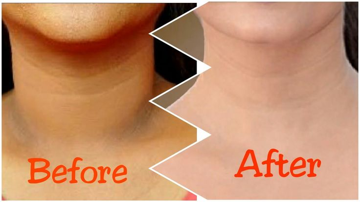 How to get rid of dark neck in 15 minutes fast and
