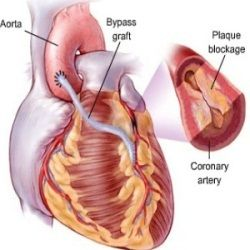 The Five Symptoms Of An Enlarged Heart