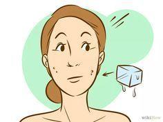 Imagen titulada Remove the Redness of a Pimple Step 1