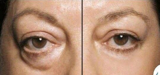Photo: Crazy good. Look good & feel even better with Instantly Ageless by Jeunesse. Get your Ageless look today http://smartbeautyproducts.jeunesseglobal.com