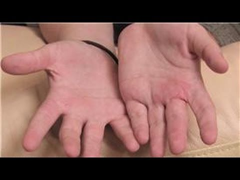 Home Remedies For Treating Baby Eczema